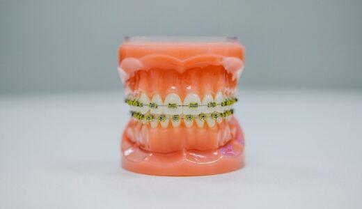 ブラジルでブラケット歯科矯正!値段と歯医者を探した方法